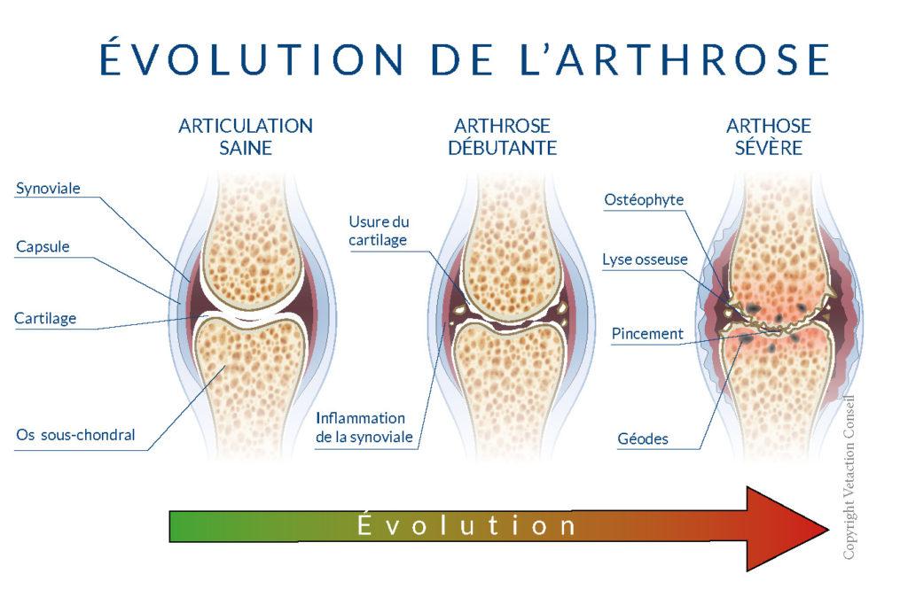 Schéma évolution arthrose