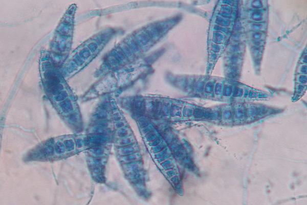 Microsporum canis 2